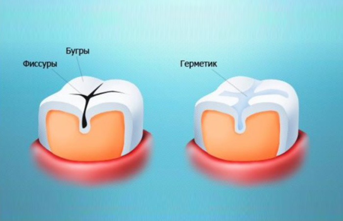 Покрытие Зубной Фиссуры Профилактическое